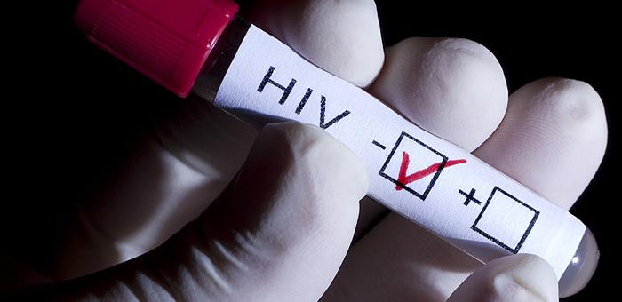 ceropositivo VIH